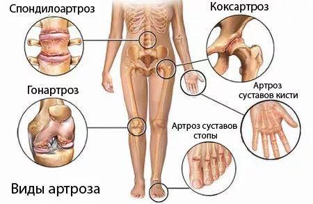 干细胞治疗,骨关节炎,干细胞储存